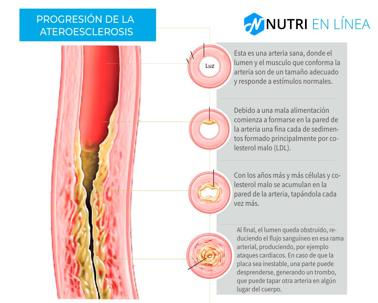progresion a ateroesclerosis